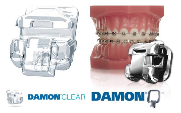 Ortodoncia invisible Damon System